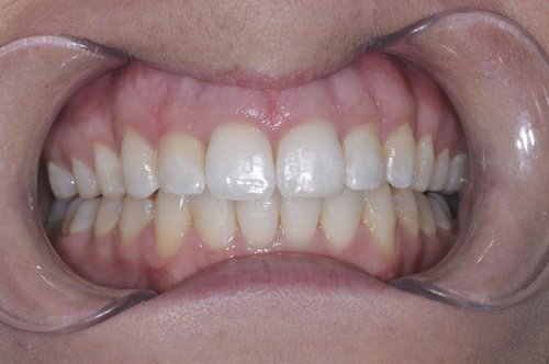 Invisalign after